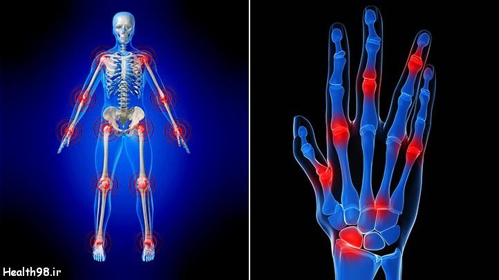 پیشگیری از التهاب مفاصل