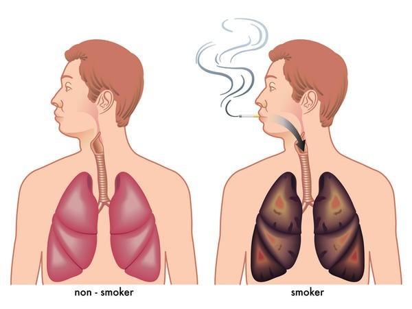 سیگار کشیدن عامل انسداد مزمن ریوی
