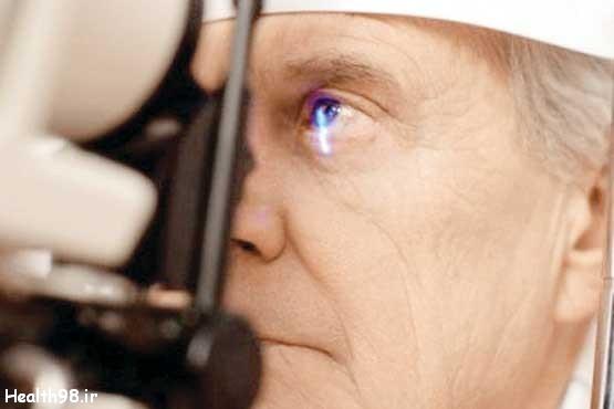 شایعترین بیماری چشم در میان سالمندان