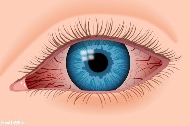 درمان نزدیک بینی چشم
