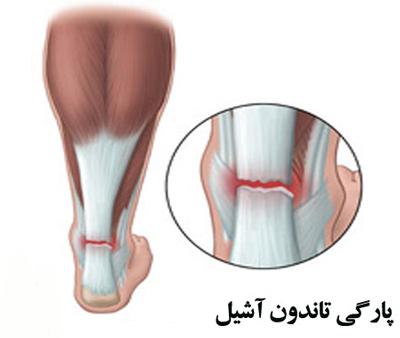 تمرین های پیشنهادی برای تقویت و درمان تاندون آشیل