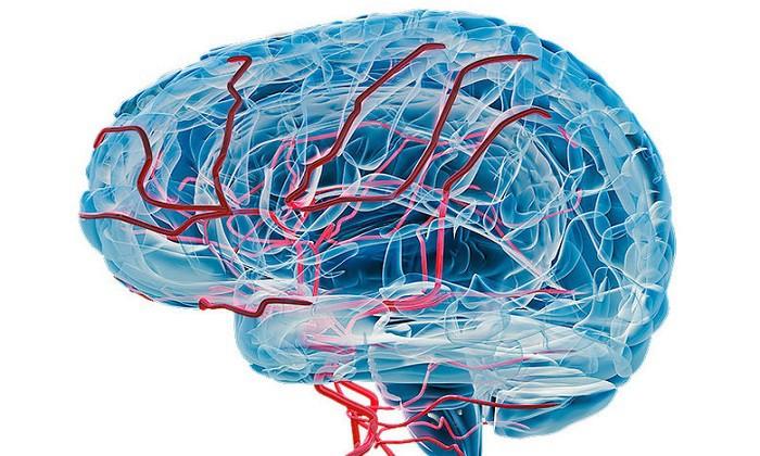 زوال عقل عروقی چیست