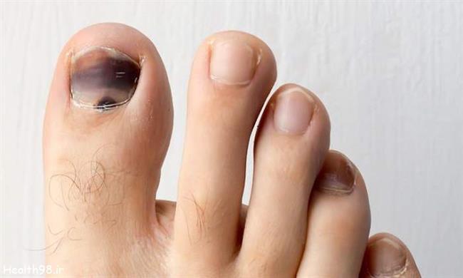 چرا ناخن پا سیاه میشه
