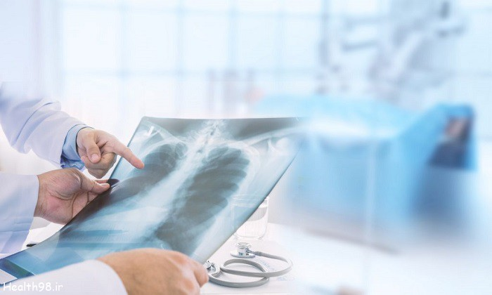 تاثیر پوکی استخوان روی سلامتی قلب