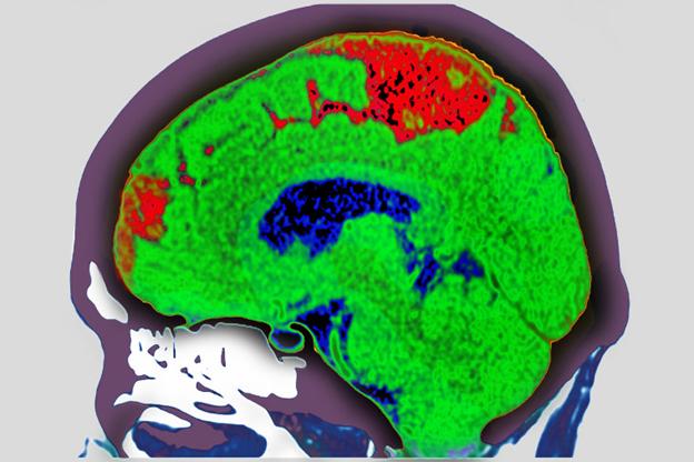 سکته مغزی چگونه اتفاق میافتد؟